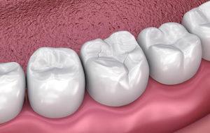 image of dental fillings and sealants pasadena tx