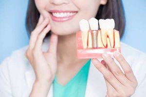 a doctor poses with sample dental implants